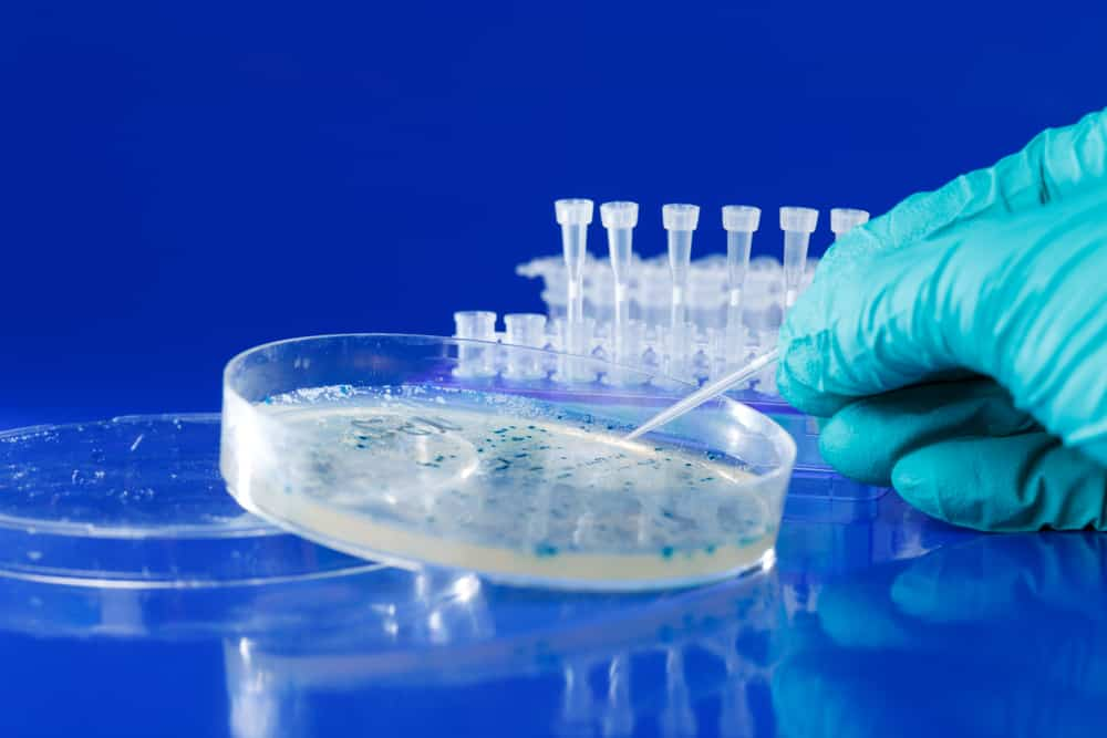 Kako nastaju bakterije u urinu